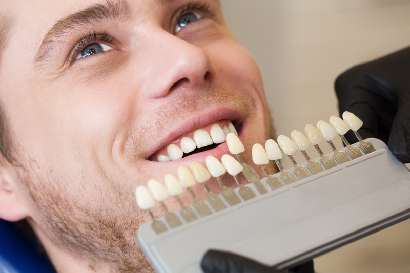 Young man smiling while having his teeth color compared to dental veneers that will be placed.