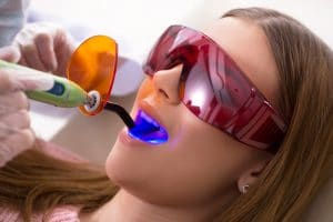 A young adult woman wearing protective glasses as she is having dental fillings set in place with a dental light.