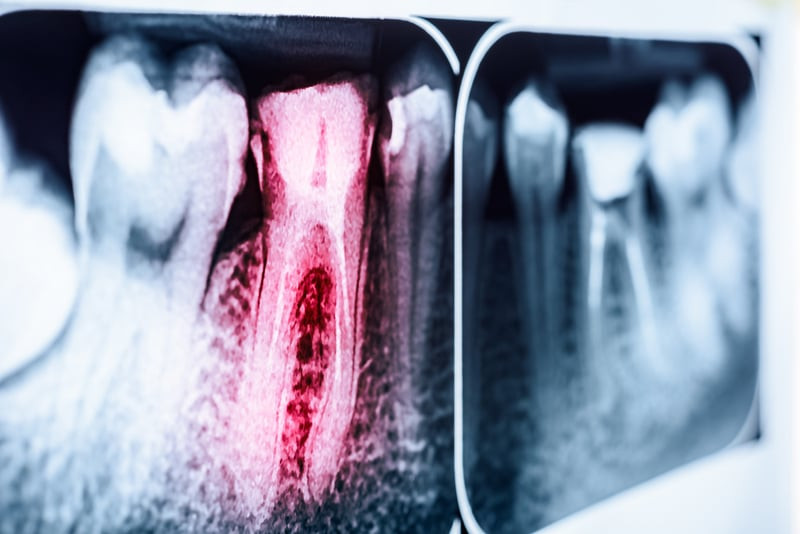 X-ray of teeth with one tooth highlighted in red