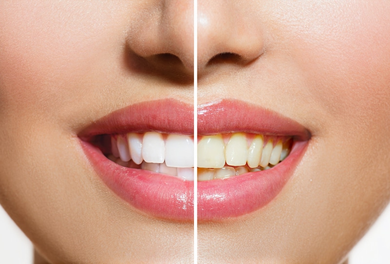 Woman's teeth before and after teeth whitening