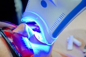 Woman sitting in dentist chair receiving a teeth whitening treatment with an LED light.