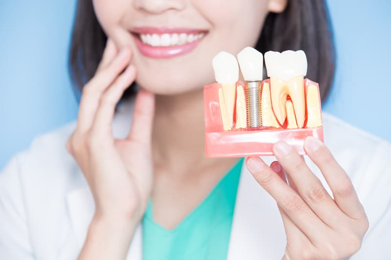 Woman dentist holding examples of what a normal tooth and a dental implant look like.