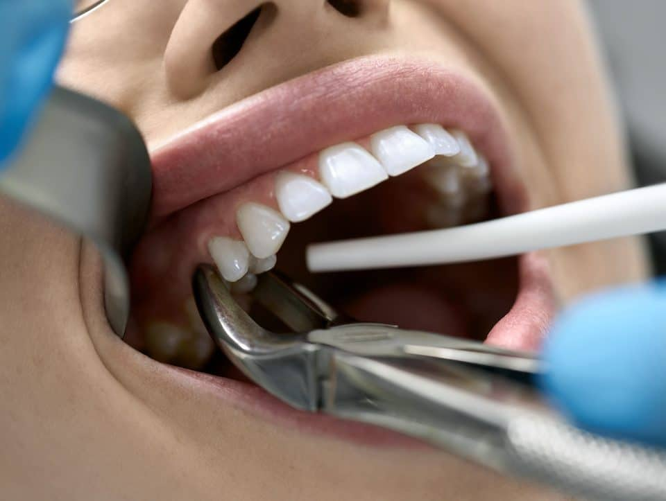 When-Will-Dentists-Pull-Teeth