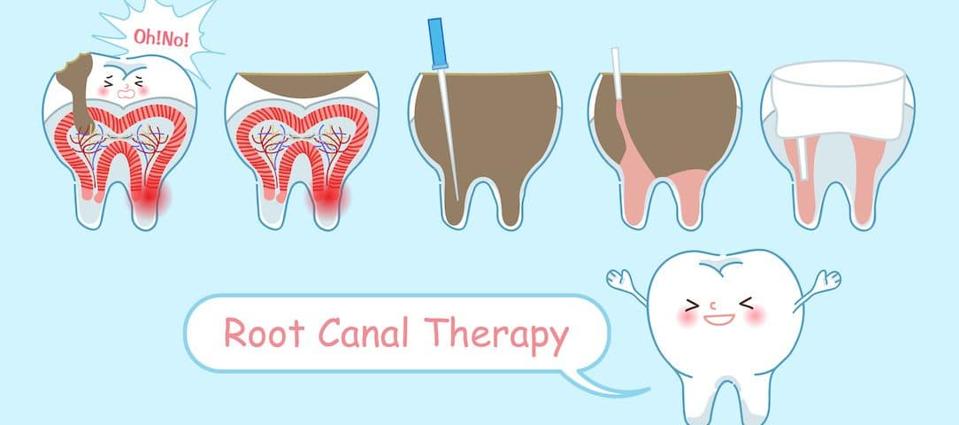 Can a Root Canal Save Your Tooth? | Stonebrook Family Dental