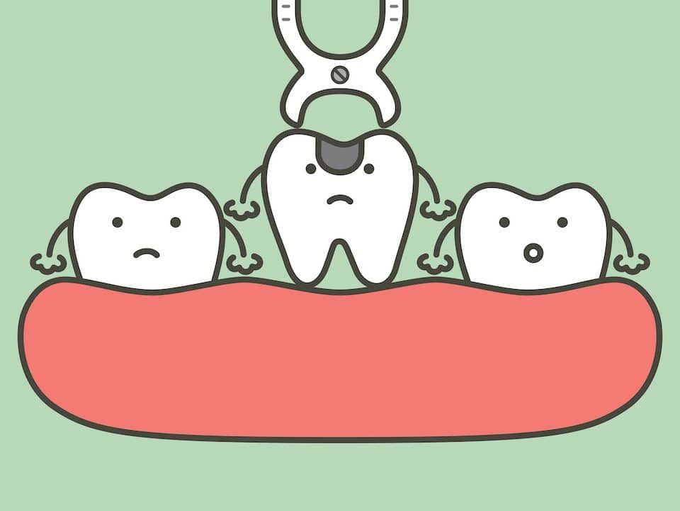 how-to-prepare-for-a-tooth-extraction-as-an-adult