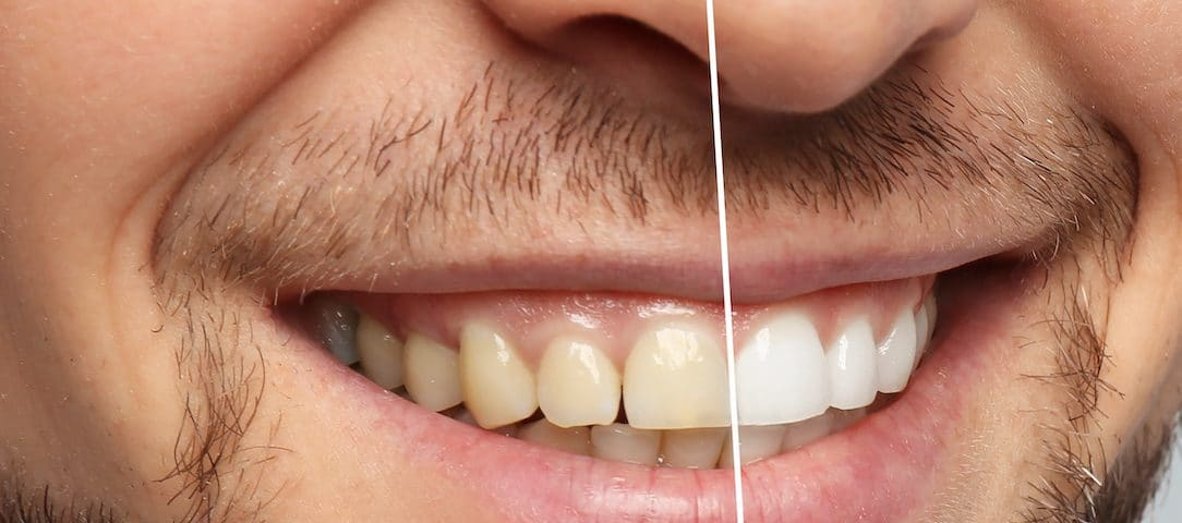 the-cosmetic-dentistry-services-that-can-boost-your-confidence