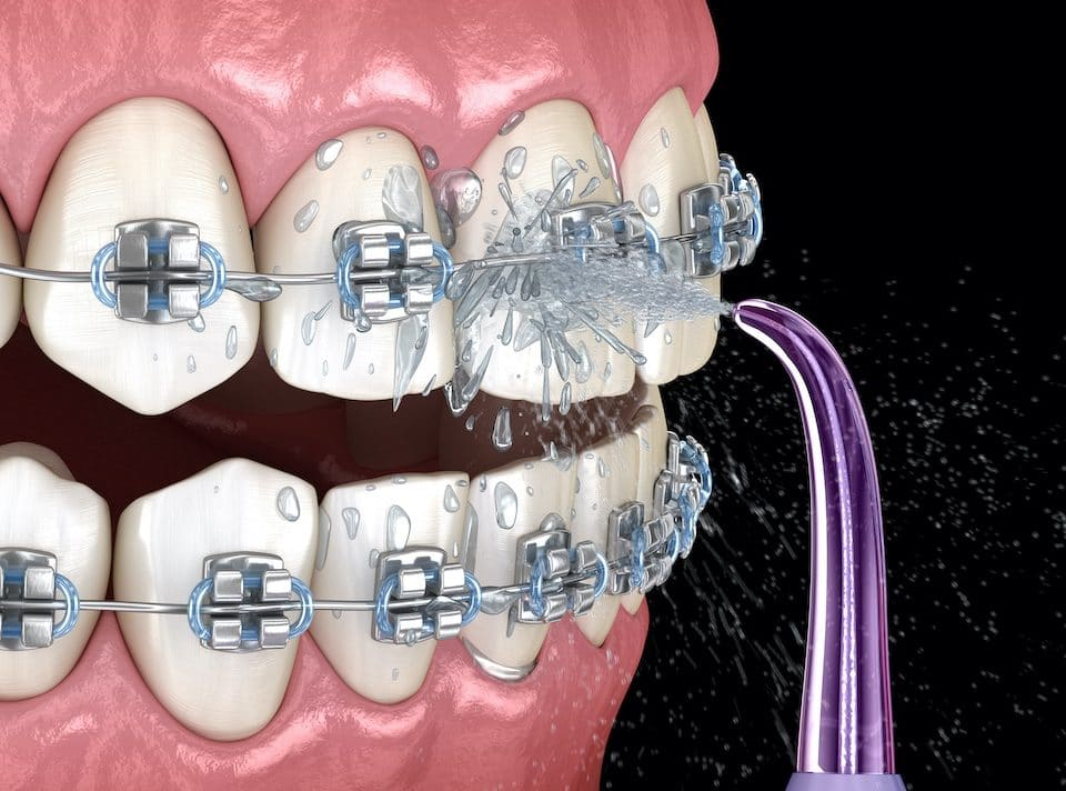 what-dental-floss-option-is-best