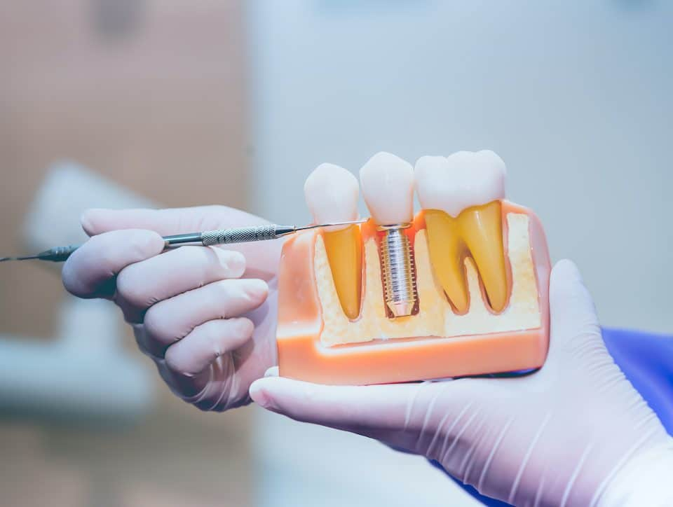 what-you-need-to-know-about-the-benefits-of-dental-implants